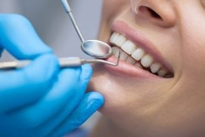 Dental check up on woman teeth