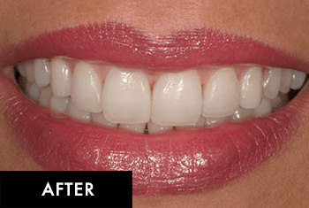 Smile Makeover Patient After