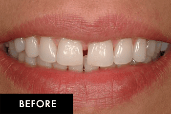 Smile Makeover Patient Before