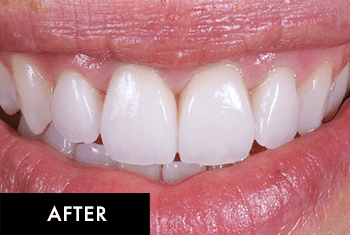 Smile Makeover Patient After 4