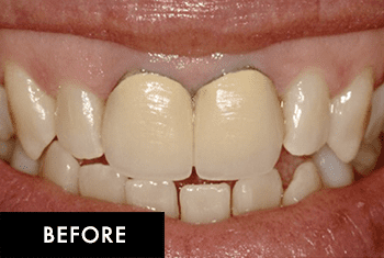 Smile Makeover Patient Before 4