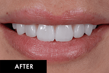 Smile Makeover Patient After 5