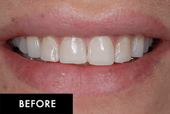 Smile Makeover Patient Before 5