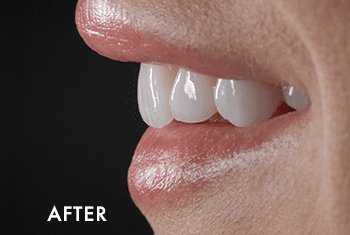 Smile Makeover Patient After 6