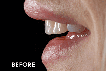 Smile Makeover Patient Before 6