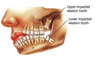 wisdom-teeth-surgery