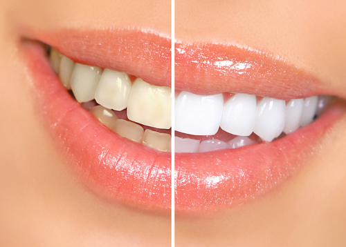 woman teeth before and after whitening-img-blog