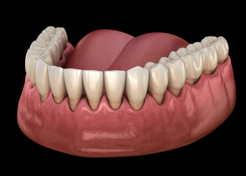 gum recession process. medically accurate 3D illustration-img-blog