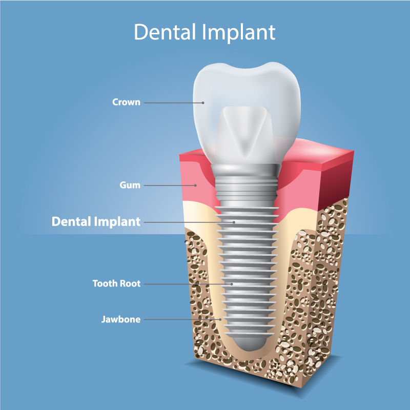 Dental implant detailed image